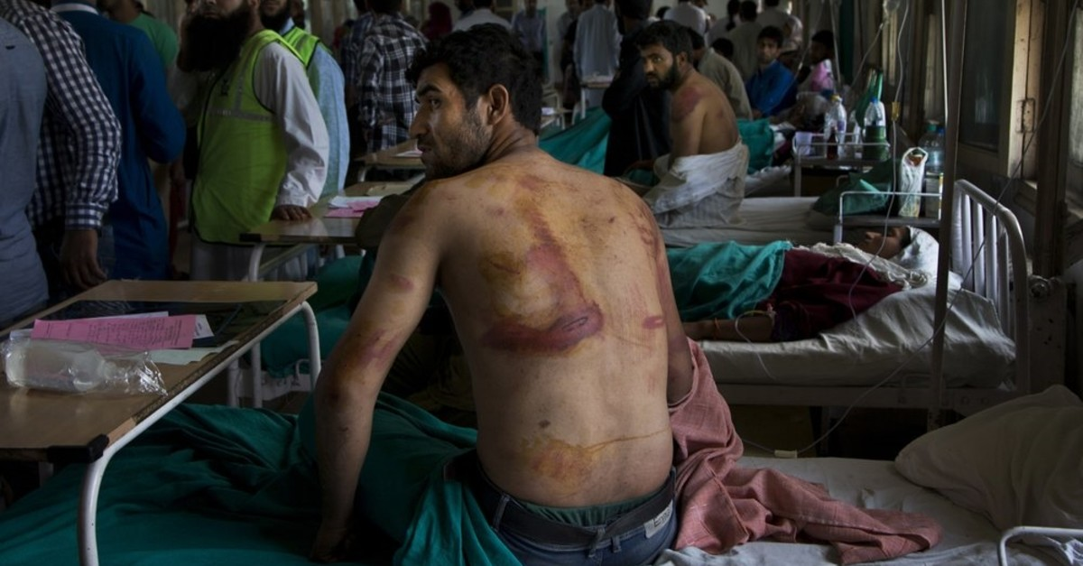In this Aug. 18, 2016 file photo, Sameer Ahmed, a Kashmiri man allegedly beaten up by Indian soldiers at Khrew village, recovers at a local hospital in Srinagar, Indian controlled Kashmir. (AP Photo)