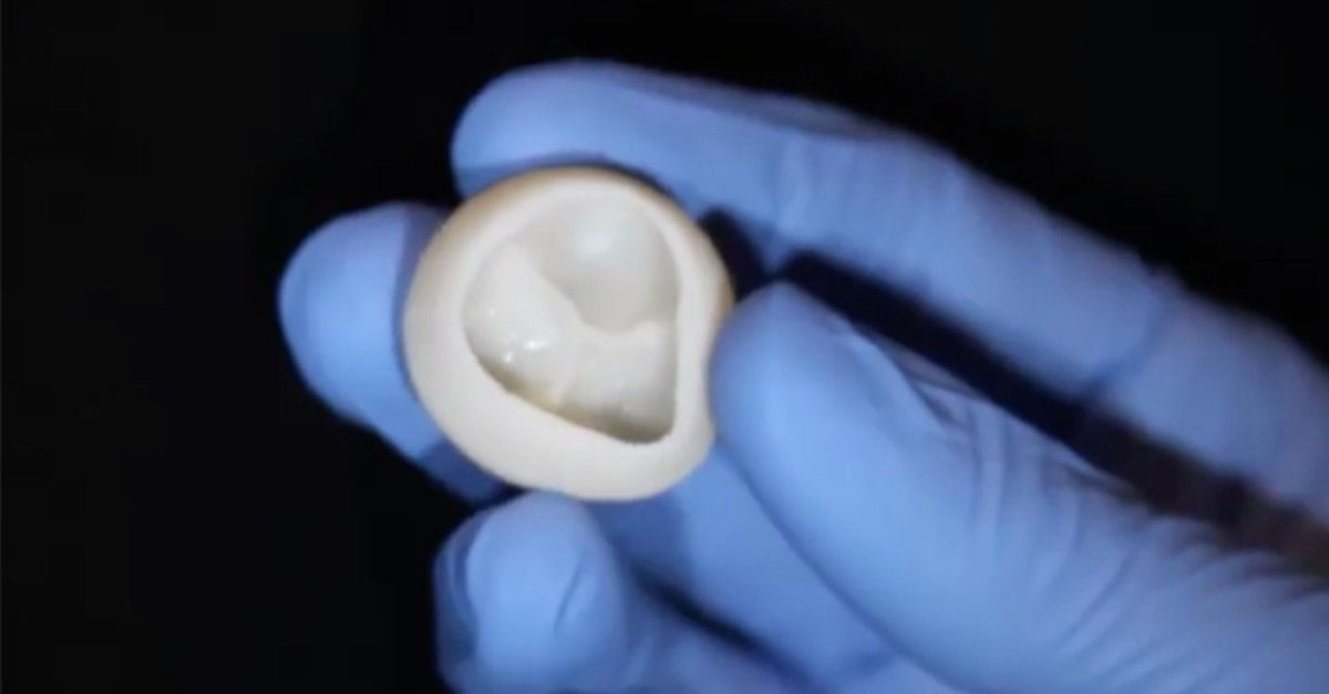 This undated image Courtesy of Carnegie Mellon University College of Engineering shows a functional heart valve which a team of US scientists have built out of collagen using a 3D bioprinter (AFP Photo)