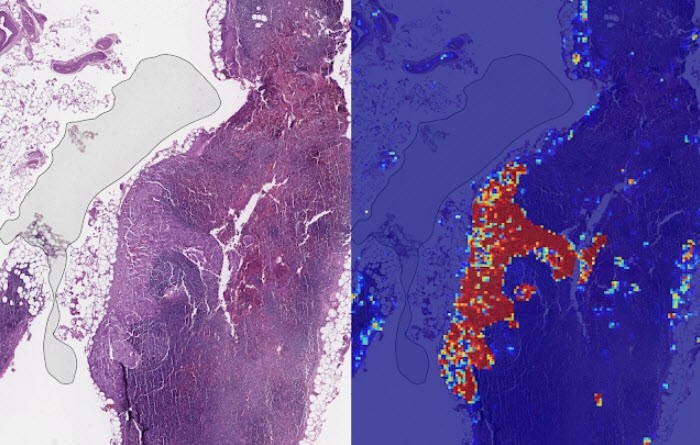 Left: Sample view of a slide containing lymph nodes. Right: LYNA identifies the tumor region in the center (red), and correctly classifies the surrounding artifact-laden regions as non-tumor (blue).(Photo: Google AI Blog)