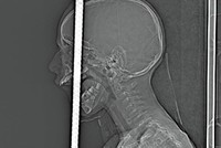 7 Turkish doctors remove rebar from boy's skull after fall from bike