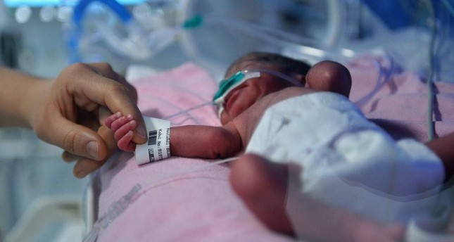 Quadruplets remain in an incubator. AA Photo