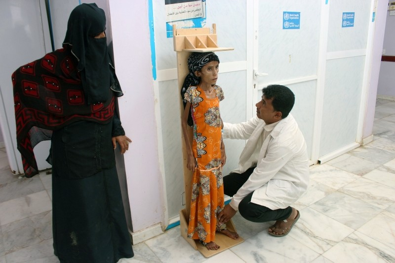 A nurse measures the height of malnourished Fatima Ibrahim Hadi, 12, at a clinic in Aslam of the northwestern province of Hajjah, Yemen Feb. 12, 2019 (Reuters File Photo)