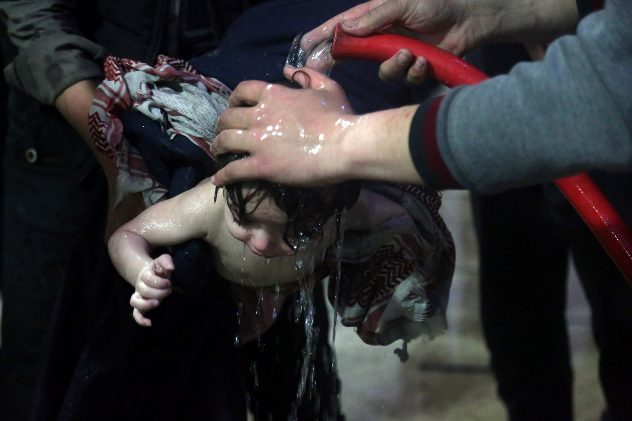 A child is treated in a hospital in Douma after the chemical attack on April 7.