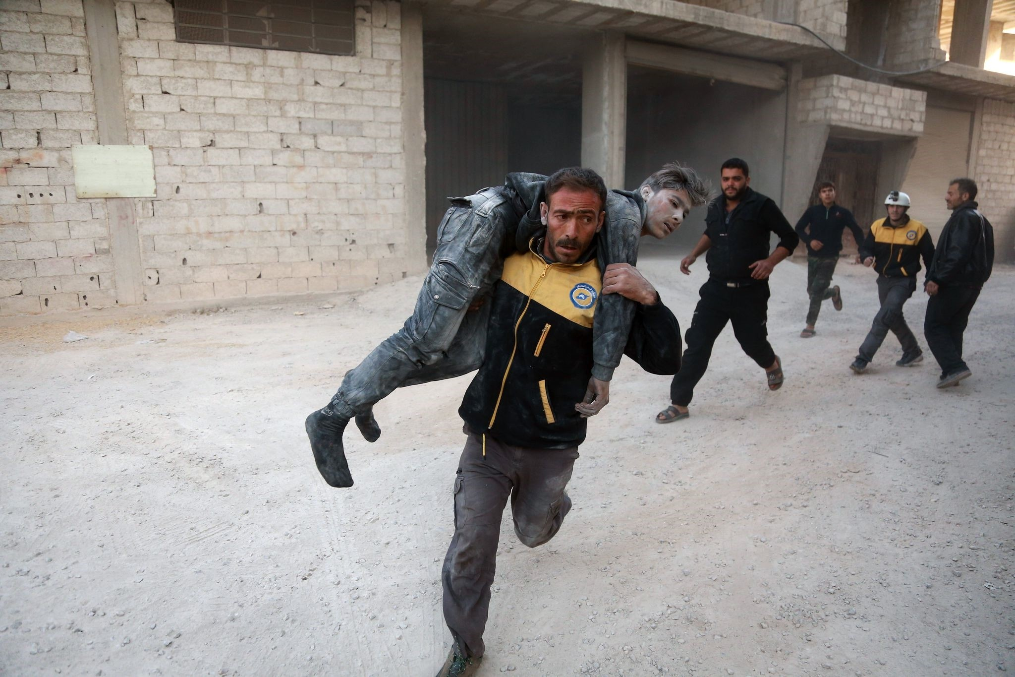 A wounded Syrian is carried by a member of the Syrian Civil Defence, known as the white helmets, to a hospital in the opposition-held besieged town of Arbin, in the eastern Ghouta region. (AFP Photo)