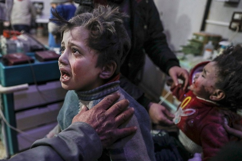 Injured children are treated at a hospital in rebel-held Douma, Eastern Ghouta (EPA Photo)