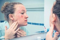 12 tips on how to prevent eczema outbreaks