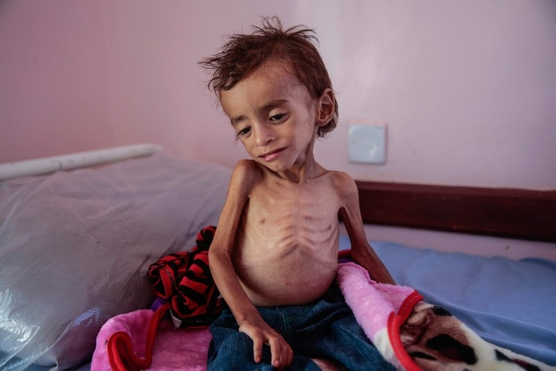 In this Oct. 1, 2018, photo, a malnourished boy sits on a hospital bed at the Aslam Health Center, Hajjah, Yemen. (AP Photo)