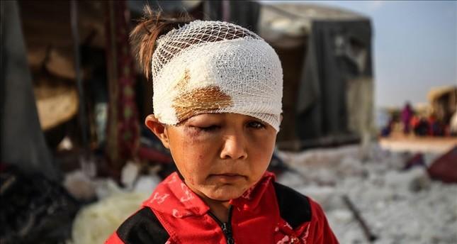 غارة روسية تقتل طفلا سوريا وتصيب 3 آخرين بجراح شمال غرب سوريا