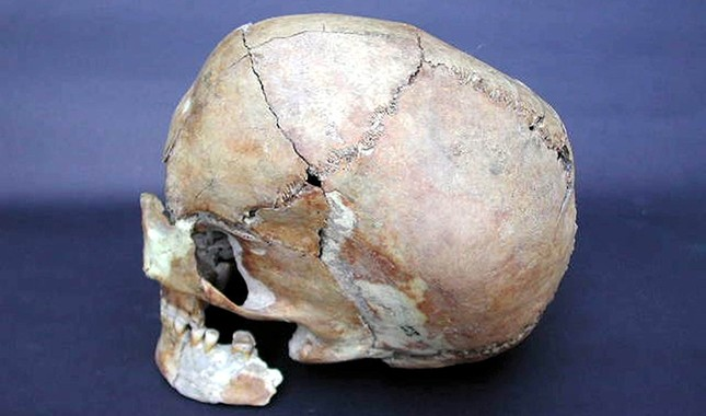 Neolithic-era skull uncovered in the Aşıklı Höyük settlement east of Aksaray, Turkey (AA Photo).