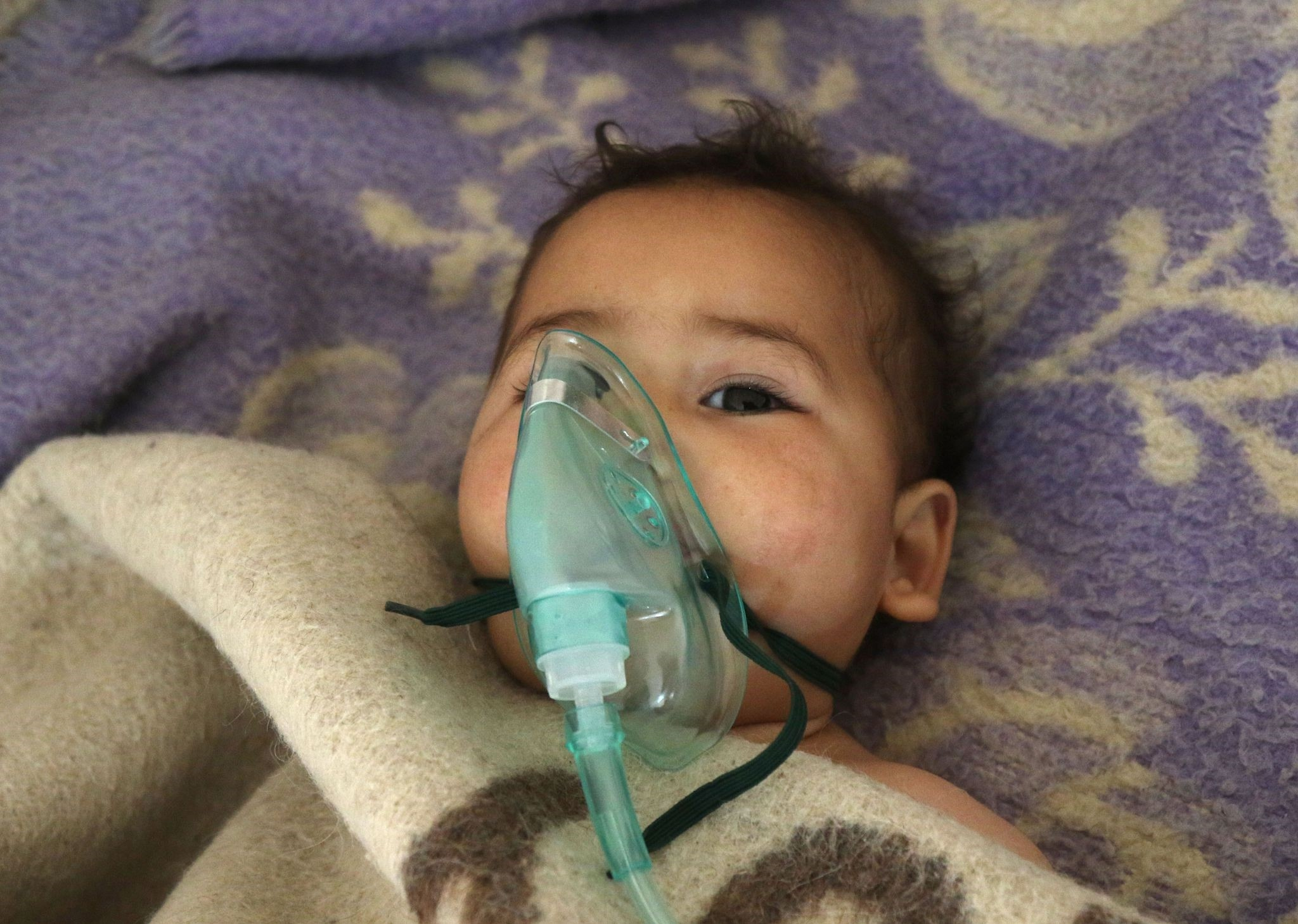 A Syrian child receives treatment at a small hospital in the town of Maaret al-Noman following a toxic gas attack in Syriau2019s northwestern Idlib province on April 4.