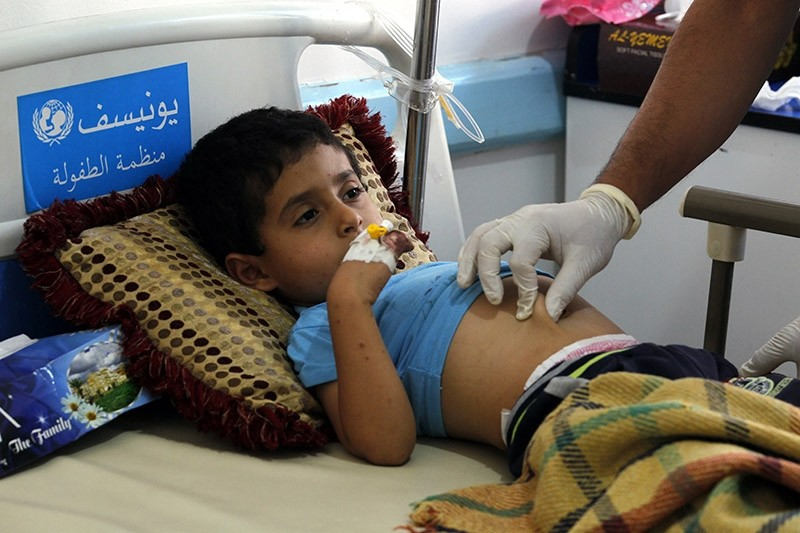A Yemeni child suspected of being infected with cholera receives treatment at a hospital in Sanau2019a, Yemen, 15 June 2017. (EPA Photo)