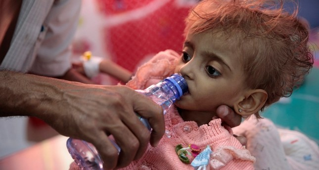 In this Thursday, Sept. 27, 2018, file photo, a father gives water to his malnourished daughter at a feeding center in a hospital in Hodeida, Yemen. (AP Photo)