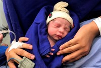 World's first baby born from uterus transplanted from dead donor