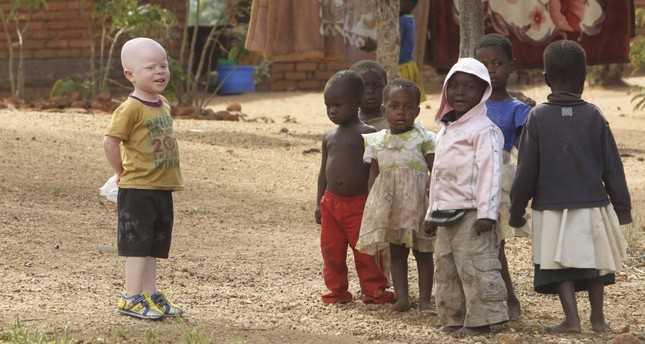 According to traditional belief, the bones of people with albinism contain gold. Their body parts are used as charms and magical potions in the belief that they bring wealth and good luck.