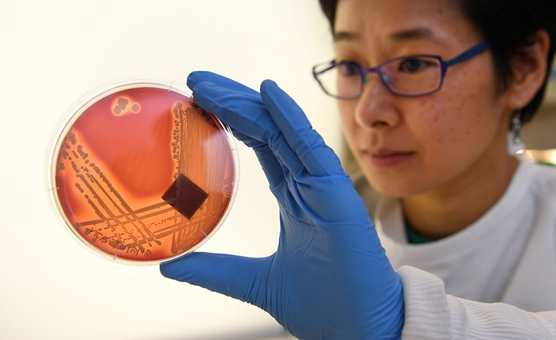 Jean Lee, a PhD student at Melbourne's Doherty Institute, inspects the superbug Staphylcocus epidermidis on an agar plate in Melbourne on Sept. 4, 2018. (AFP Photo)