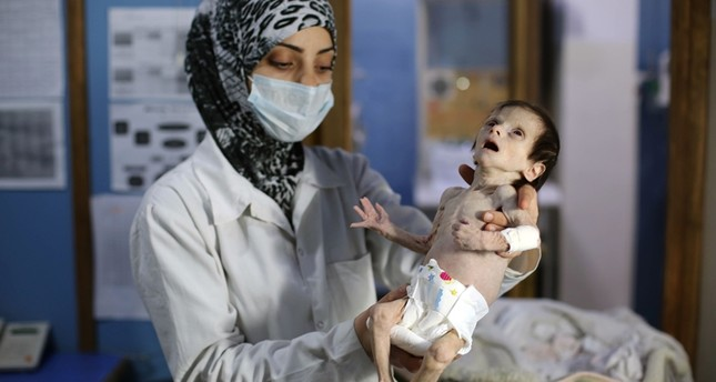 A Syrian infant suffering from severe malnutrition is carried by a nurse at a clinic in the town of Kafr Batna, in the eastern Ghouta region on the outskirts of the capital Damascus (AFP Photo)