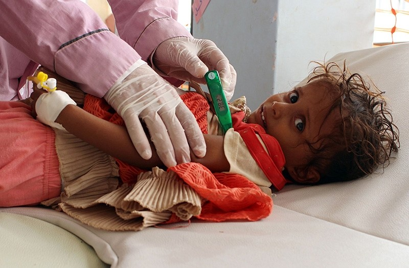 A Yemeni child suspected of being infected with cholera is checked by a doctor at a makeshift hospital operated by Doctors Without Borders (MSF) in the northern district of Abs in Yemen's Hajjah province , on July 16, 2017 (AFP Photo)
