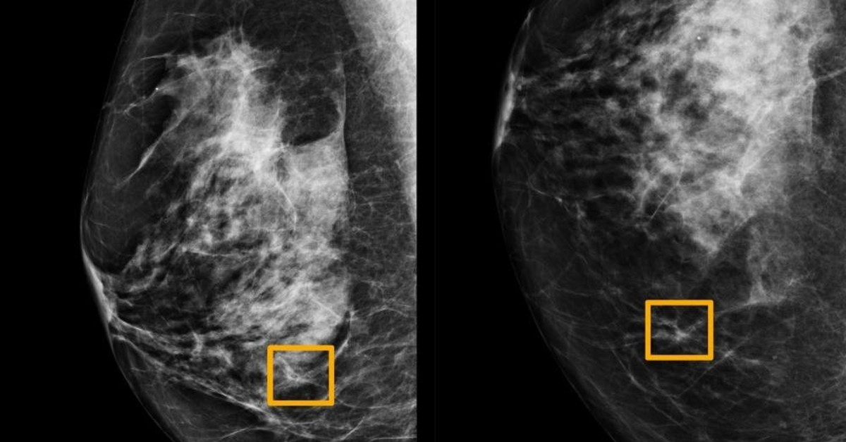 A yellow box indicates where an artificial intelligence (AI) system found cancer hiding inside breast tissue, in an undated photo released by Northwestern University in Chicago, Jan. 1, 2020. (Northwestern University via Reuters)