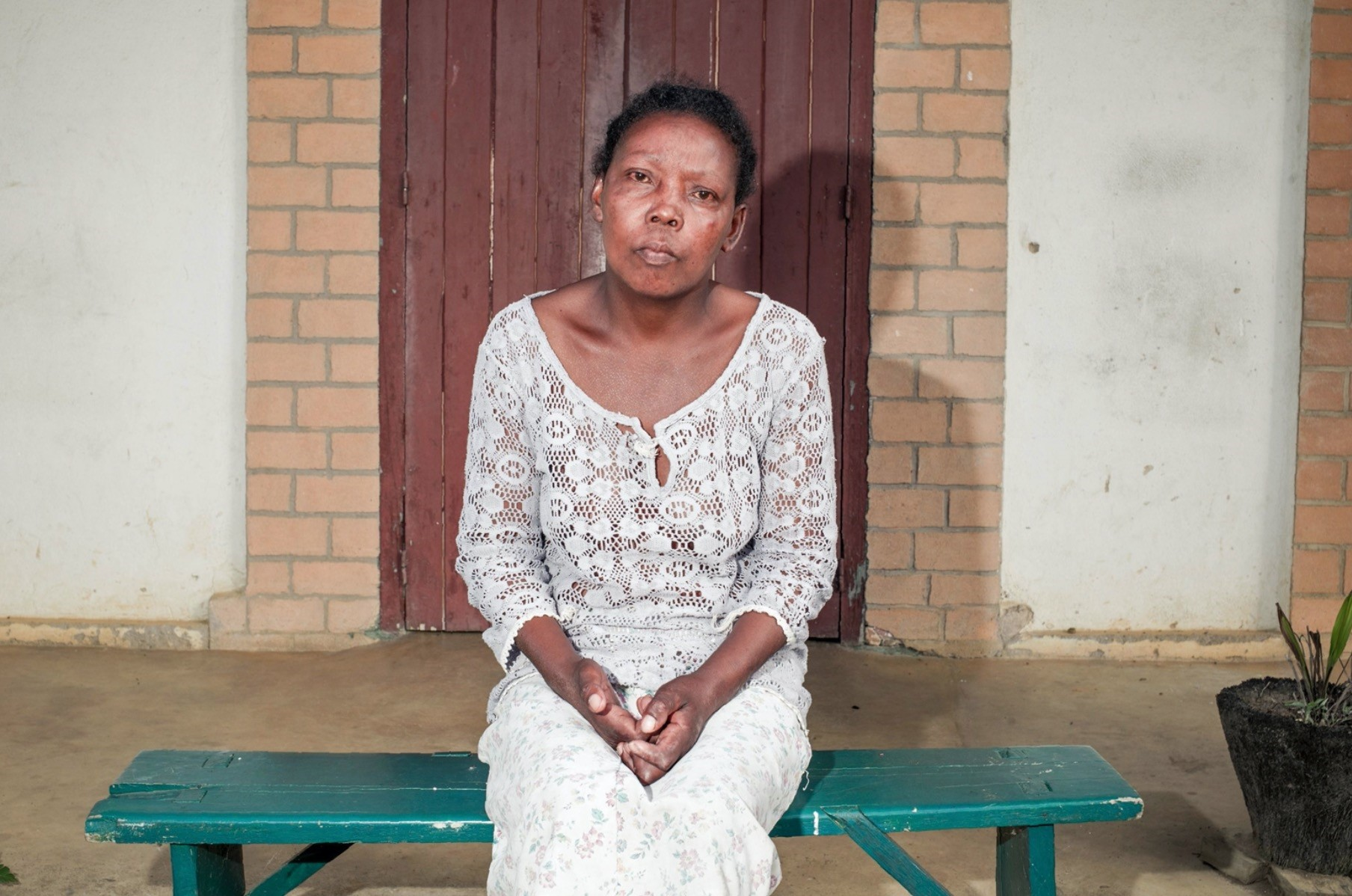 Although leprosy is not very contagious, Vololonirina Ranorovelo knows she will never be able to return to her village because her family and friends will reject her.