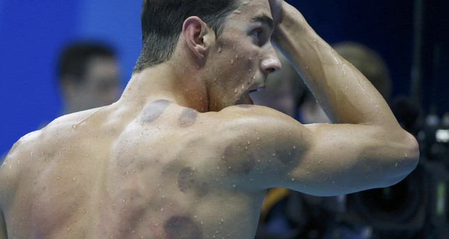 Michael Phelps USA of USA is seen with red cupping marks on his shoulder as he competes. REUTERS Photo