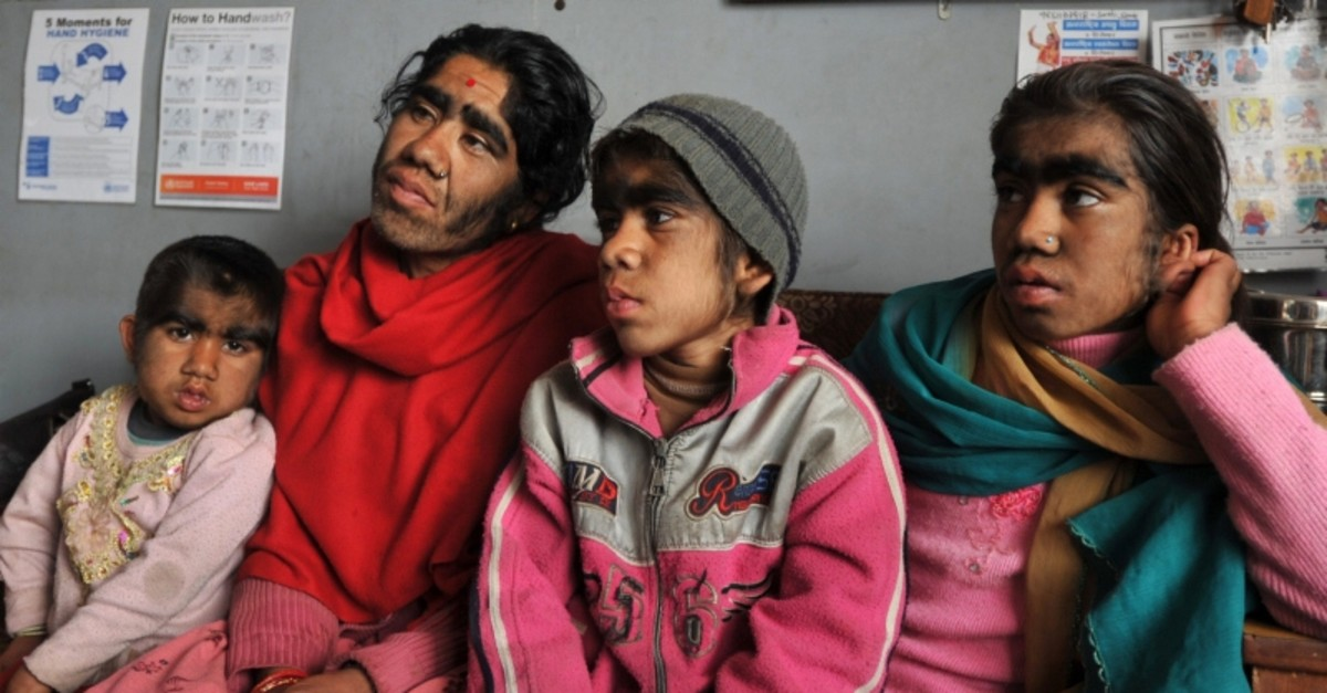 A Nepalese family suffering from a rare genetic condition called hypertrichosis in which hair grows all over the face arrived in the Nepalese capital of Kathmandu for treatment of their ,werewolf-like, appearance, March 25, 2012. (AFP Photo)