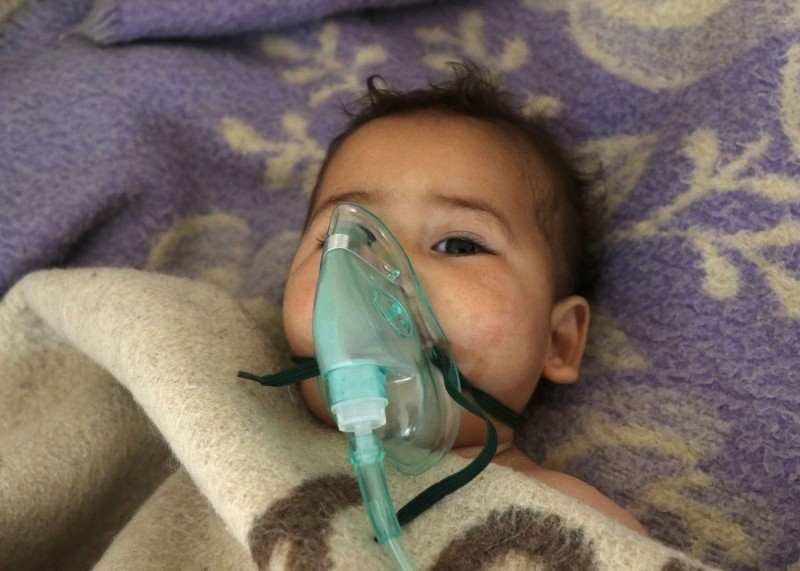 A Syrian child receives treatment at a small hospital in the town of Maaret al-Noman following a suspected toxic gas attack in Khan Sheikhun, a nearby rebel-held town in Syriau2019s northwestern Idlib province, on April 4, 2017. (AFP Photo)