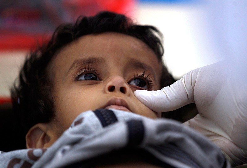 A Yemeni child suspected of being infected with cholera receives treatment at a makeshift hospital in Sanaa, Yemen, June 5, 2017. (AFP Photo)