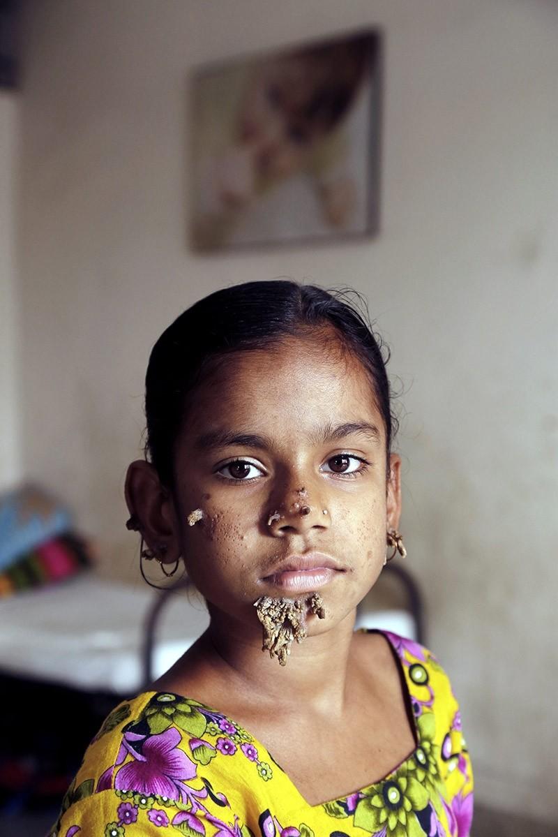 Shahana Khatun, a ten-year-old girl, sits during a medical check-up at the Dhaka Medical College Hospital in Dhaka, Bangladesh on Feb. 2, 2017. (EPA Photo)