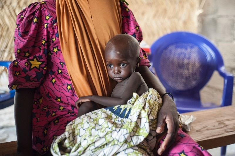 This photo taken on June 30, 2016 shows a young girl suffering from severe acute malnutrition sitting on her mother's lap in the Muna informal settlement in the outskirts of Maiduguri capital of Borno State, northeastern Nigeria. (AFP Photo)