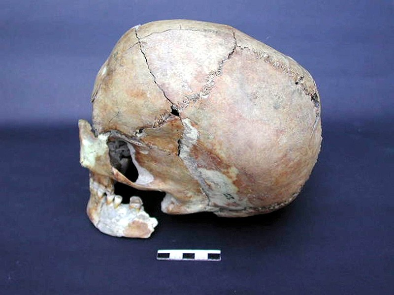 Neolithic-era skull uncovered in the Au015fu0131klu0131 Hu00f6yu00fck settlement east of Aksaray, Turkey (AA Photo).