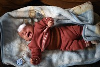 Syrian baby Karim may lose second eye, father says