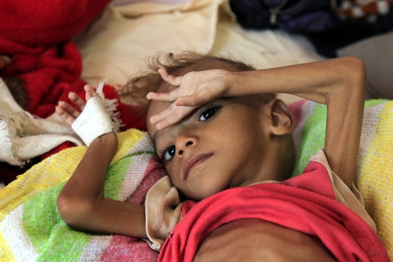 A malnourished child lies on a bed as he receives treatment at a hospital amid worsening malnutrition, in Sana'a, Yemen. (EPA Photo)