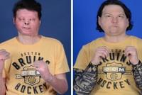 نجاح أول عملية ثلاثية متزامنة في نيويورك لزرع وجه ويدين