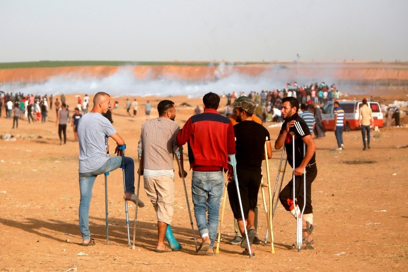 Injured Palestinian men talk during clashes with Israeli forces along the border with the Gaza strip east of Jabalia on May 18, 2018. (AFP Photo)