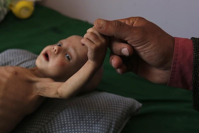 A malnourished Yemeni child receives treatment amid worsening malnutrition in the emergency ward of a hospital in Sana'a, Yemen, 15 November 2017. (EPA Photo)