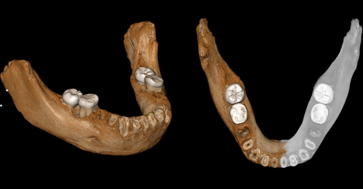 This combination of images provided by the Max Planck Institute for Evolutionary Anthropology, Leipzig shows two views of a virtual reconstruction of the Xiahe mandible. At right, the simulated parts are in gray. (AP Photo)