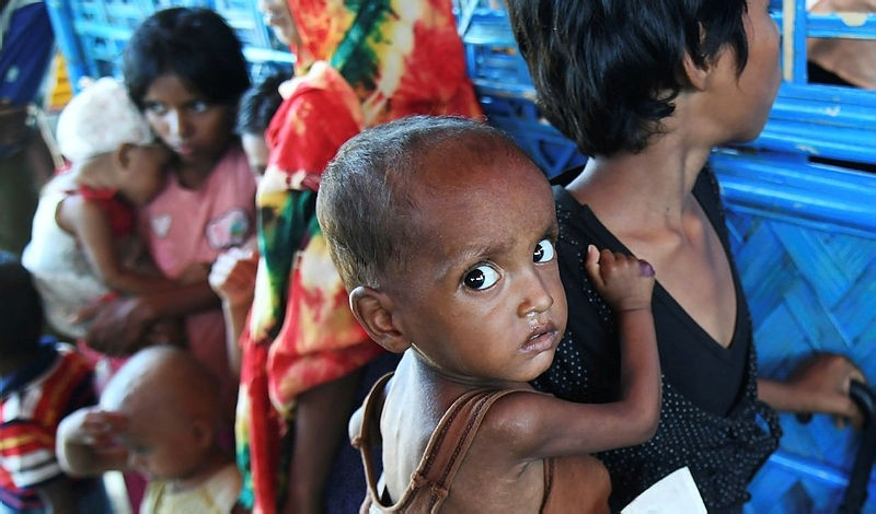Zahid Hasan, the 1.5 years old Rohingya Muslim refugee with her sister waits to see a doctor to receive treatment for severe malnutrition at the Balukhali refugee camp in Bangladesh's Ukhia district on November 6, 2017. (AFP Photo)